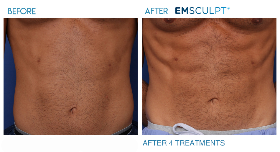 Image result for emsculpt before and after