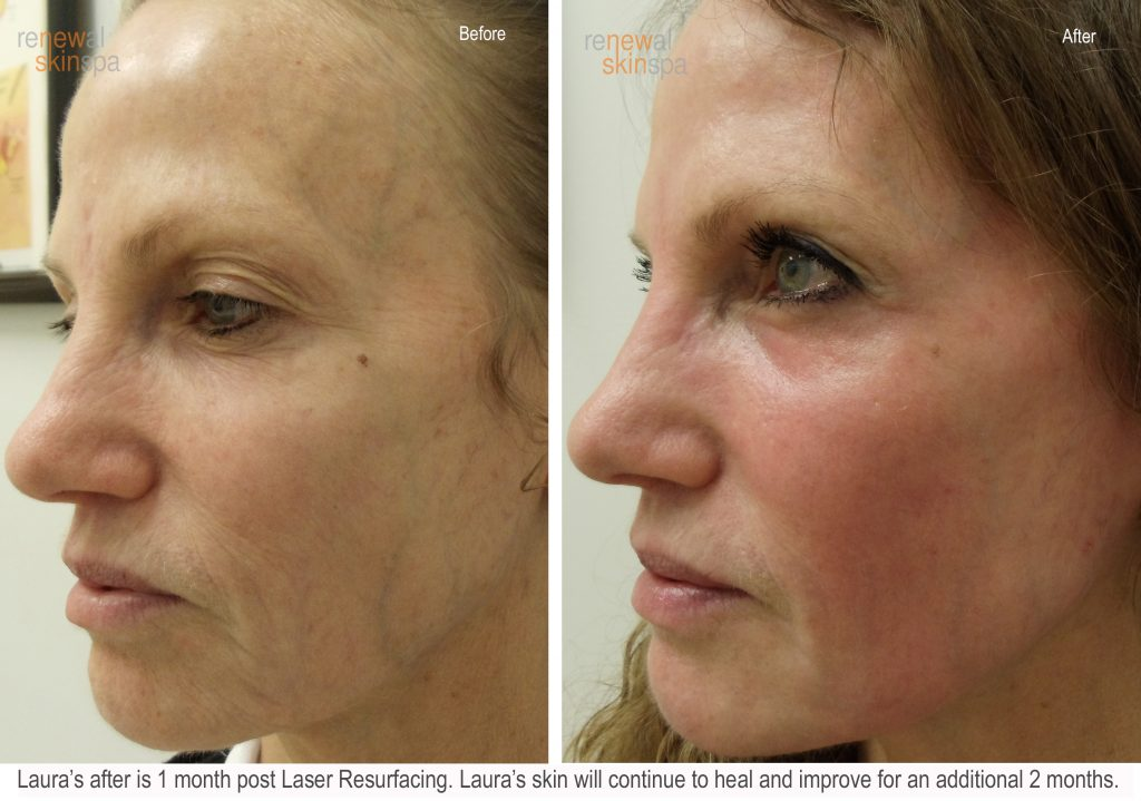 Contour Resurfacing Laser Grand Rapids Renewal Skin Spa