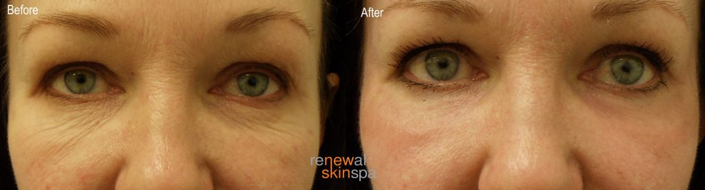 laser-resurfacing-under-eyes