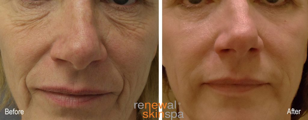 resurfacing-contour-renewal-skin-spa