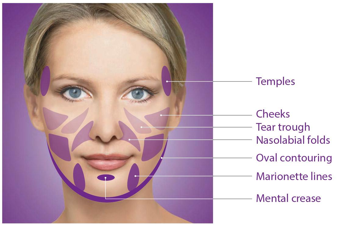 Renewal Skin SpaSculptra - Renewal Skin Spa
