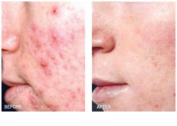 Renewal Skin Spa | Acne Treatments