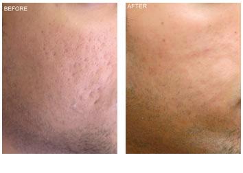 acne_scar_removal_1