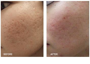 acne_scar_removal_2