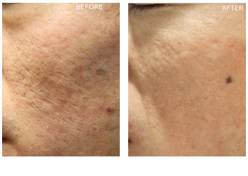 acne_scar_removal_4