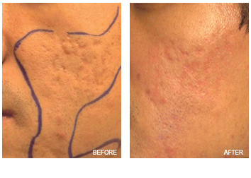 acne_scars_removal