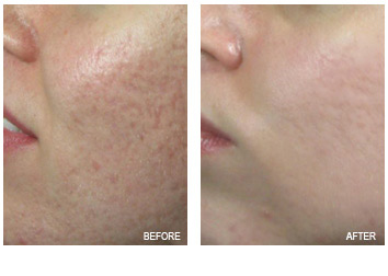 acne_scars_removal_5