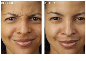 botox_treatment_wrinkles_4