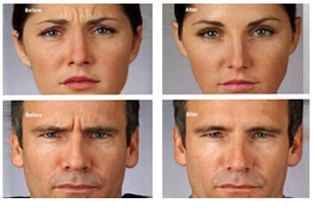 botox_wrinkles_forehead_lines