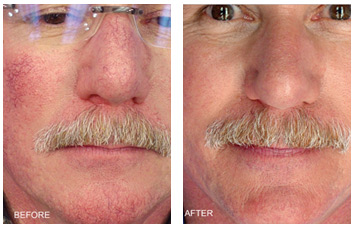 facial-vein_redness_rosacea