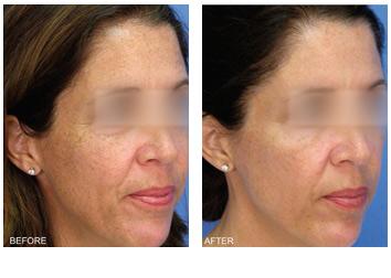 laser_peel_pigment_wrinkles