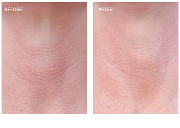 laser_peel_redness_wrinkles