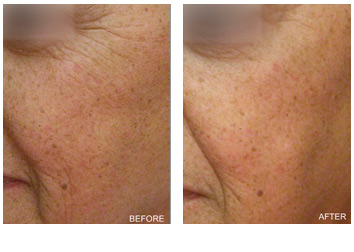 laser_peel_wrinkles_texture_-2