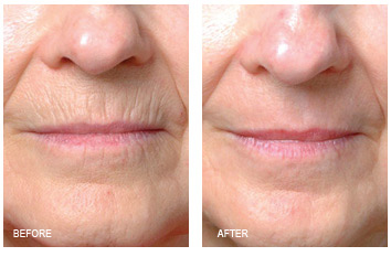 laser_resurfacing_lip_lines_1