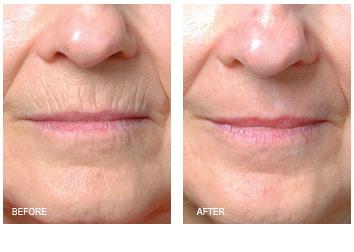 laser_resurfacing_lip_lines