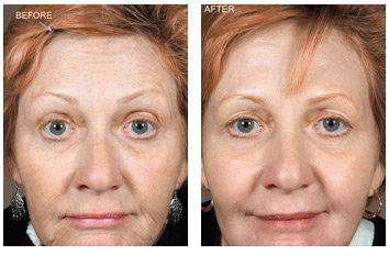 laser_resurfacing_wrinkles_lines