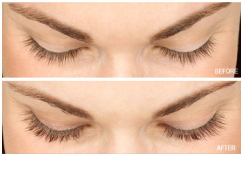 latisse_eyelash_enhancer