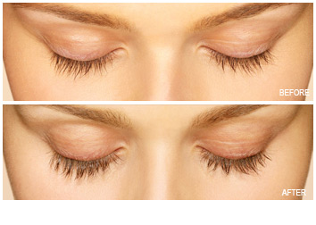 latisse_longer_fuller_lashes