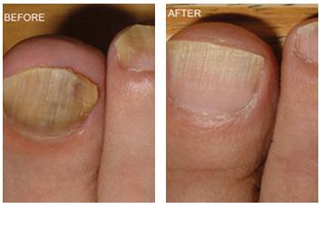nail_fungus_removal