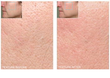peels_pore_reduction_texture