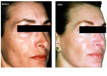 peels_wrinkles_aging_discoloration