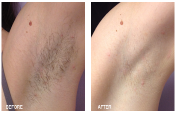 Laser Hair Removal Grand Rapids Renewal Skin Spa