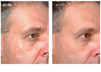 profractional_wrinkles_scar_removal