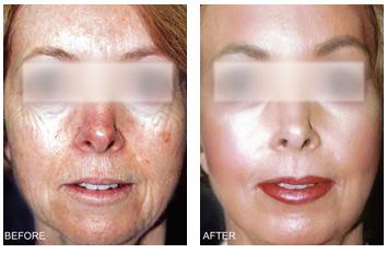 resurfacing_aging_skin_texture