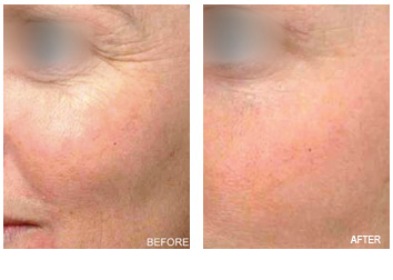 resurfacing_eye_wrinkles_puffiness