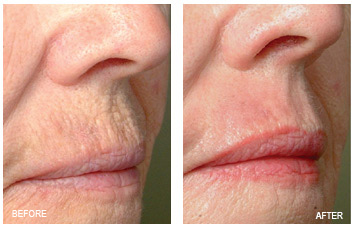 resurfacing_lip__wrinkles