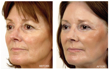 resurfacing_wrinkles_lines_damage