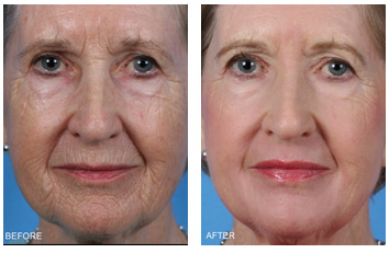 resurfacing_wrinkles_sun_damage