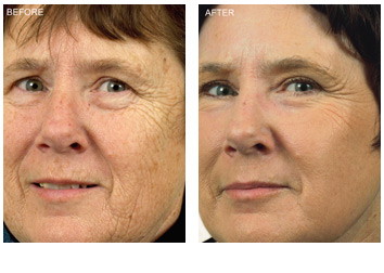 resurfacing_wrinkles_sun_damage_3