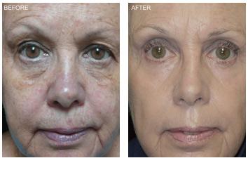 resurfacing_wrinkles_texture_aging