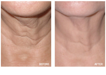 skin_tightening_loose_neck