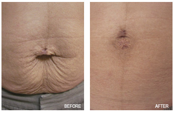 skin_tightening_sagging_abdomen